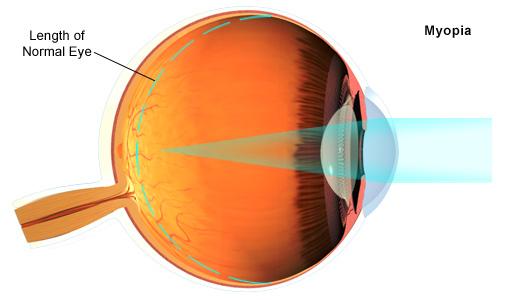 Myopia uncorrected